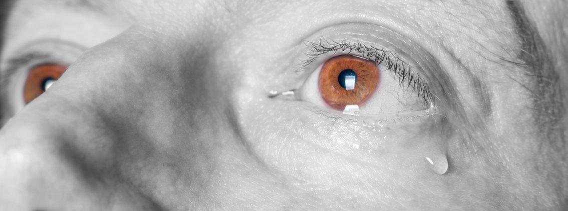tear-eye